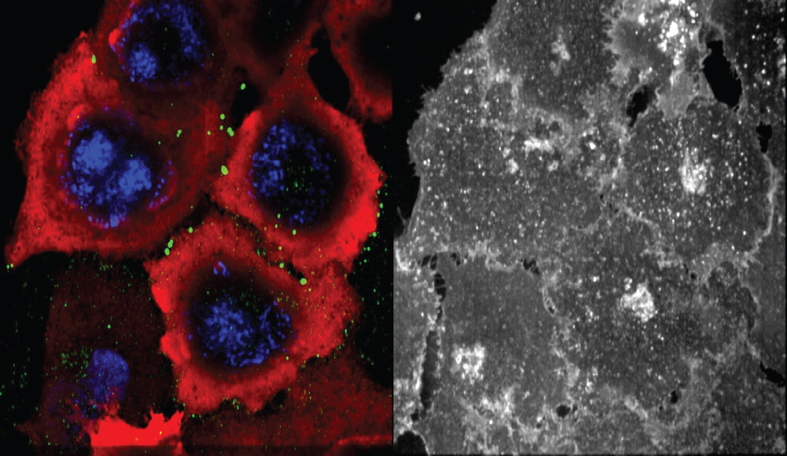 Visualizing protein transport and interaction during stressSub-cellular confocal microscopy